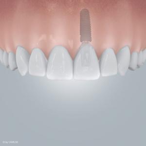 Einzelzahnlücke mit Implantatversorgung