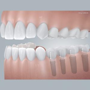 Freiendlücke mit Implantatversorgung