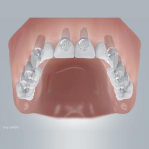 Zahnloser Oberkiefer mit Implantatversorgung