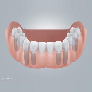 Zahnloser Unterkiefer mit Brückenversorgung